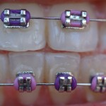 iStock_000002259334XSmall braces on teeth