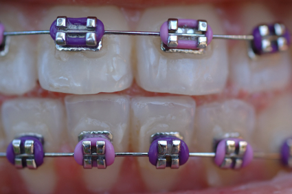 how to put wire back in molar bracket