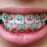 iStock_000002551343XSmall colourful braces on teeth