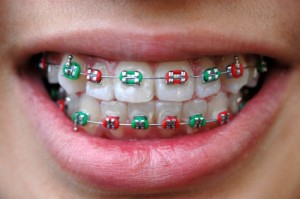 iStock_000002551343XSmall colourful braces on teeth