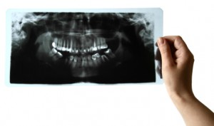 iStock_000013123590XSmall root canal x-ray