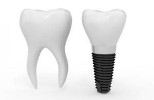 iStock_000014314701XSmall dental implant