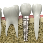 Cross section of a dental implant