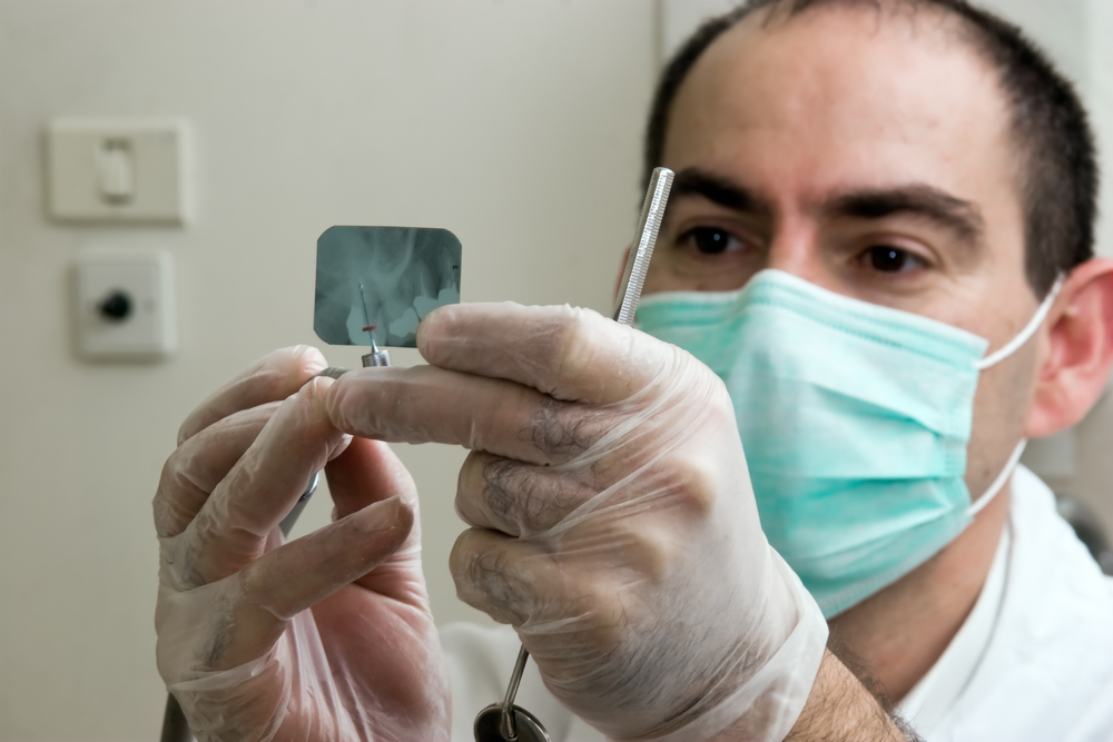 Chlorhexidine gels and rinses reduce dry socket after third