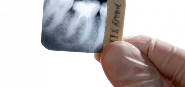shutterstock_2296216-root canal xray