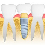 shutterstock_70163050 dental implants
