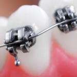 shutterstock_72458023 Dental braces super macro
