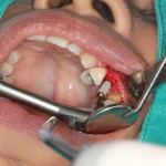 shutterstock_79298812-implant placement