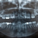 shutterstock_37849495 -impacted wisdom teeth
