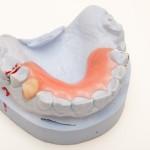 shutterstock_67570366-partial denture