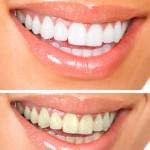 shutterstock_73004329-tooth whitening