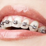 shutterstock_81157801-orthodontic appliance