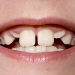shutterstock_8524240-unerupted canines