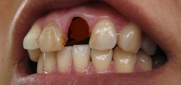 shutterstock_70287046 - avulsed tooth