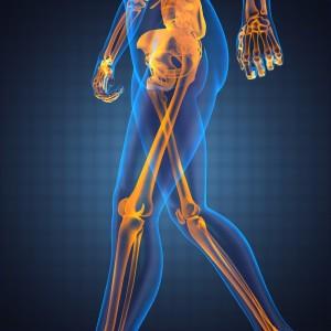 Lower limbs x-ray