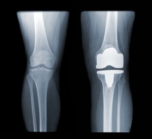 x-ray of knee replacement