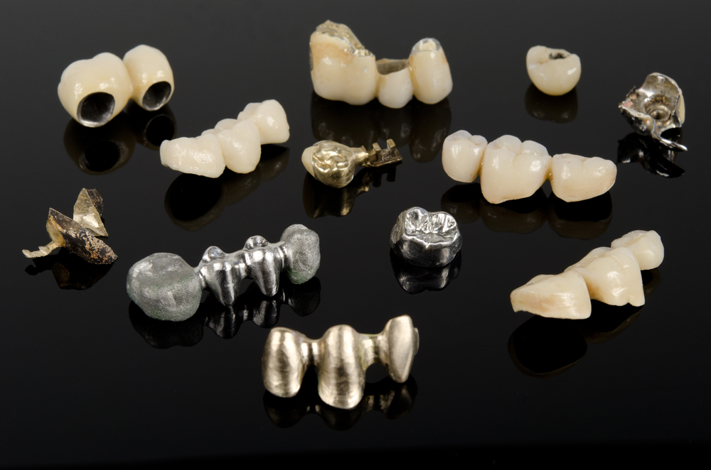 Porcelain-fused-to-metal or all-ceramic crowns?