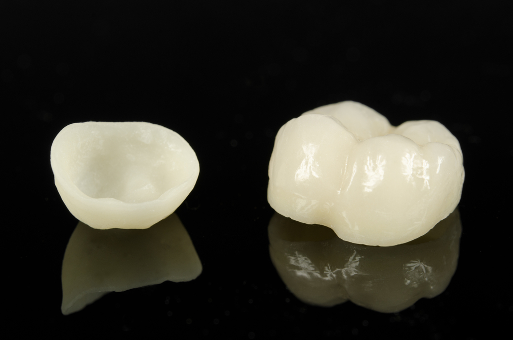 All Ceramic Crowns Failure Rates Higher In Posterior