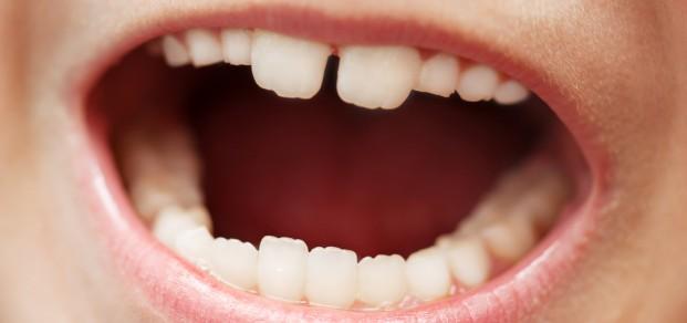 shutterstock_54584944  - mixed dentition