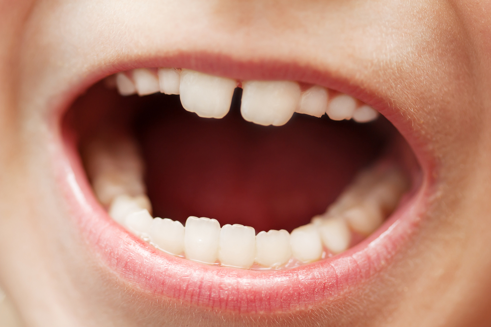 micro invasive treatments can reduce caries progression multiple personality disorder diabetes multiple personality disorder treatment