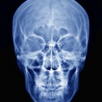 shutterstock_119979133  - PA Skull x-ray