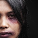 Bruised woman's face