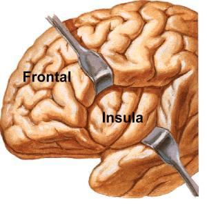 Changes to the function of the insula have been consistently implicated in depression at all stages of the illness