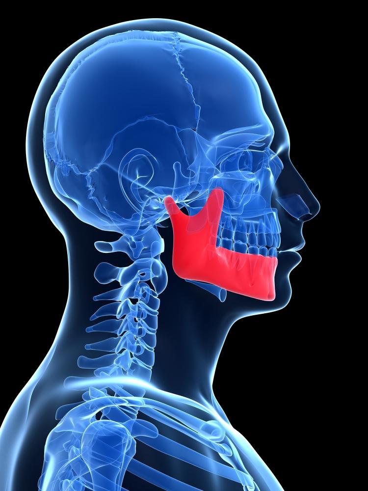 Mandibular Angle Fractures Do Third Molars Have An Influence