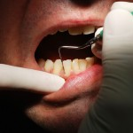 dental_shutterstock_57647551-150x150