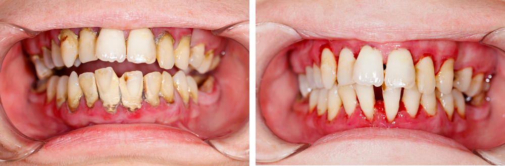 Periodontal Treatment Outcomes From Long Term