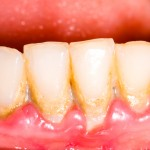 plaque,calculus,periodontal disease