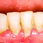 plaque,calculus,periodontal disease