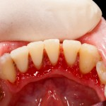 gum disease, scale and polish