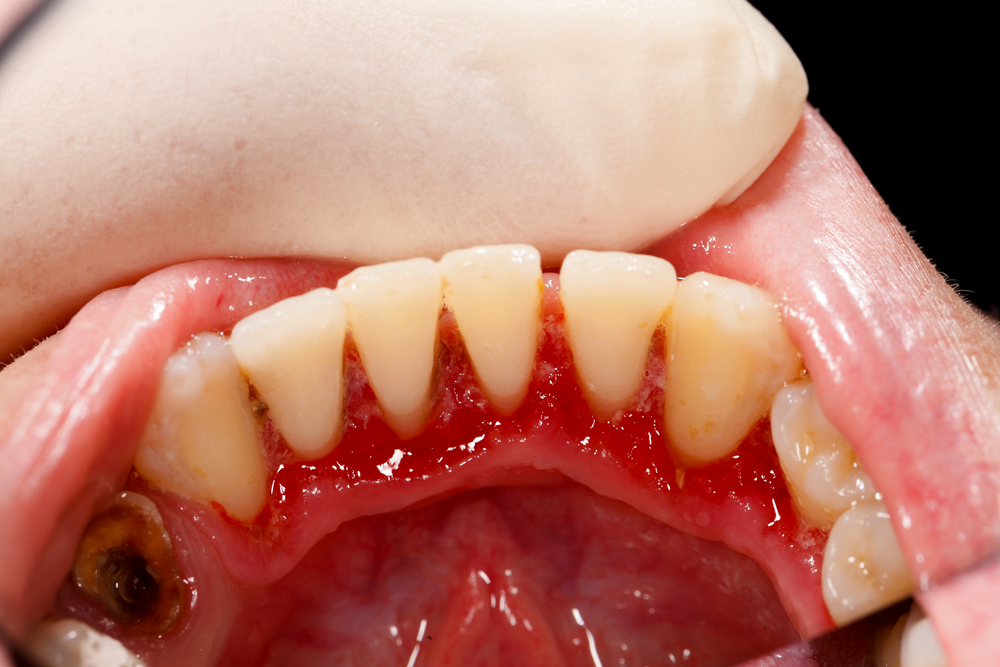 What does periodontitis look like 7