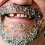 Authors reviewed studies that assessed oral health of people with severe mental illness.