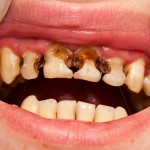 gross caries, anterior teeth