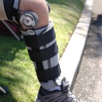 Braces and orthoses for treating osteoarthritis of the knee