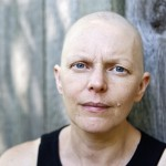 Female cancer patient