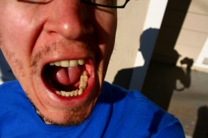 The link between eating disorders and dental problems was first identified back in the 1970s.