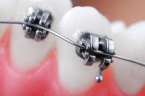 The continued use of self-ligating brackets has been the source of some controversy in dental research and on academic blogs.
