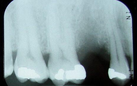 Missing premolar