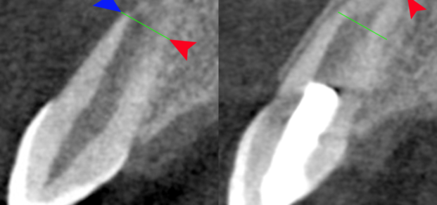 By Drs. Ken Hargreaves and Obadah Austah, Dept of Endodontics, University of Texas Health Science Center at San Antonio - Ken Hargreaves, CC BY 3.0 us, https://commons.wikimedia.org/w/index.php?curid=30784169