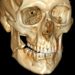 3D_CT_of_bilateral_mandible_fracture-150