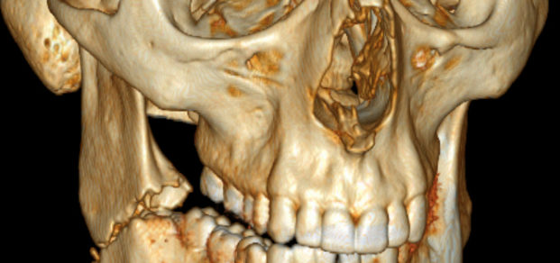 3D_CT_of_bilateral_mandible_fracture