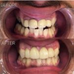 Anterior_crowns_of_Emax