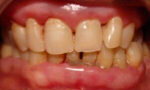 Periodontal disease Periodontitis