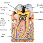 tooth diagramme, caries